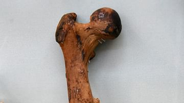 Fractured Femur of an Egyptian Mummy