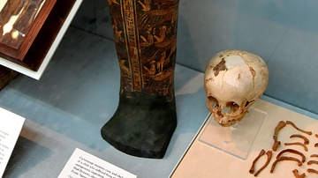Cartonnage Mummy Case & Skeleton of a Child with a Rare Bone Disease
