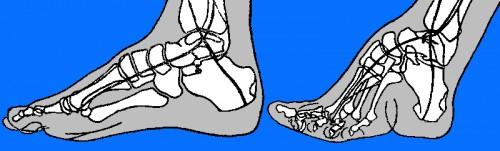Los efectos del pie vinculante en los huesos del pie